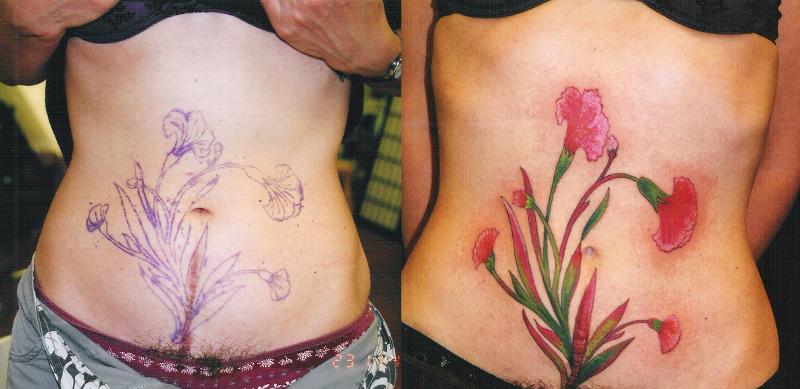 Скрытие татуировкой шрама после кесарева сечения